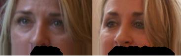 hangende oogleden oefeningen